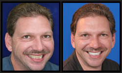 Before and After Photos - Dental Veneers