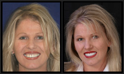 Before and After Photos - Porcelain Crowns and Veneers