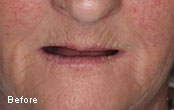 Before After Pictures Cosmetic Dentures