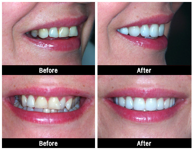 smile2 Austin Dental Implants